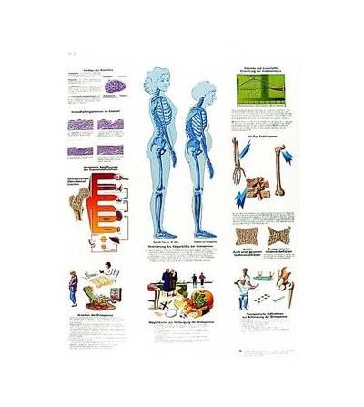 Lámina 3B Osteoporosis